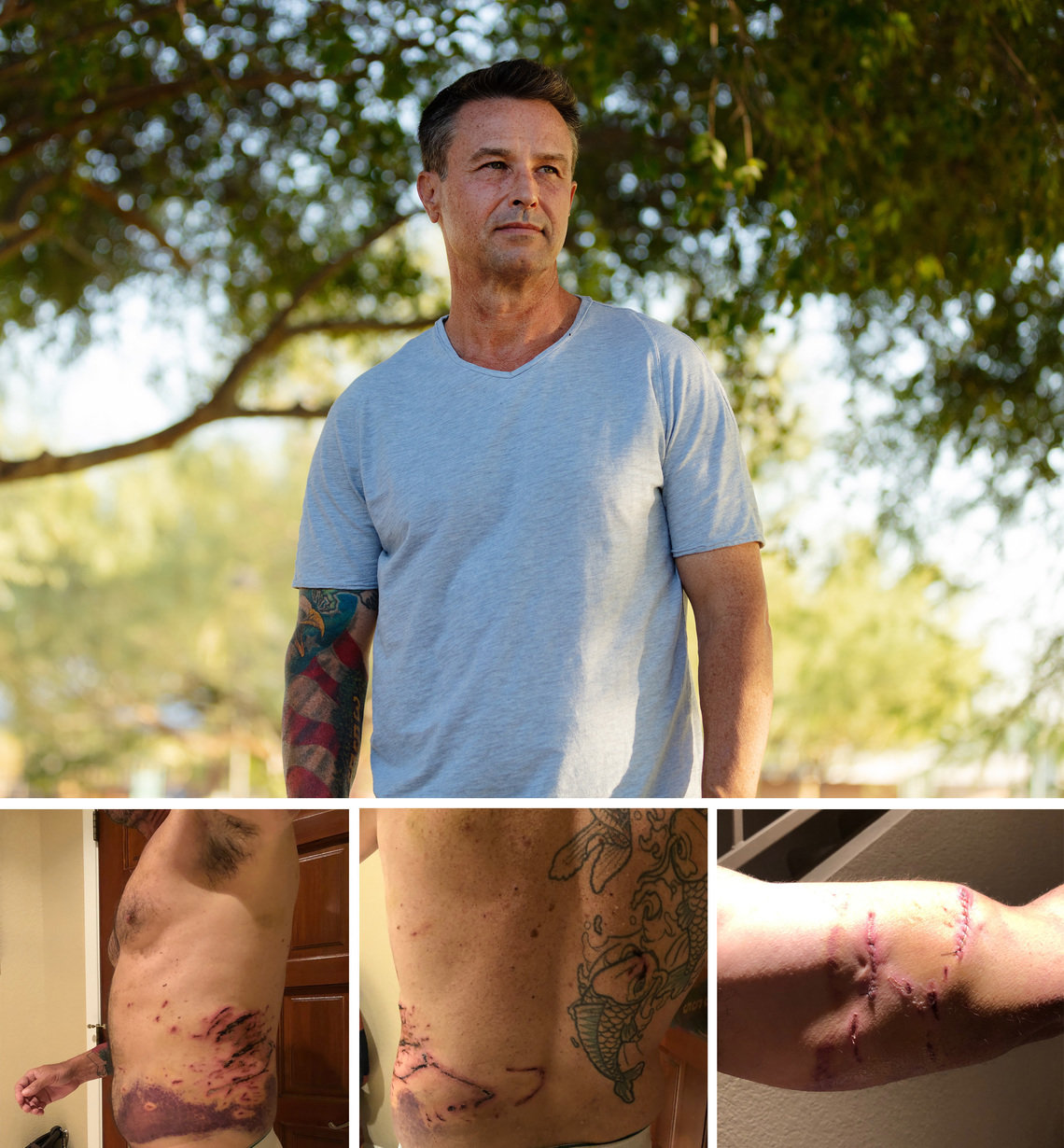A police dog mauled Patrick Gibbons in Scottsdale, Arizona, in May 2019. The photos below, which Gibbons said were taken about a week after the incident, show his injuries from the dog to his torso and arm.