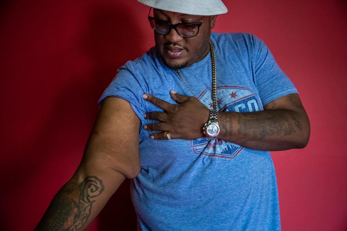 "Lawrence ""Moe"" Burt, a 42-year-old resident of Indianapolis, in September. Nearly 20 years ago, Burt was mauled by an Indianapolis police dog. His right arm still shows the scars from that bite."