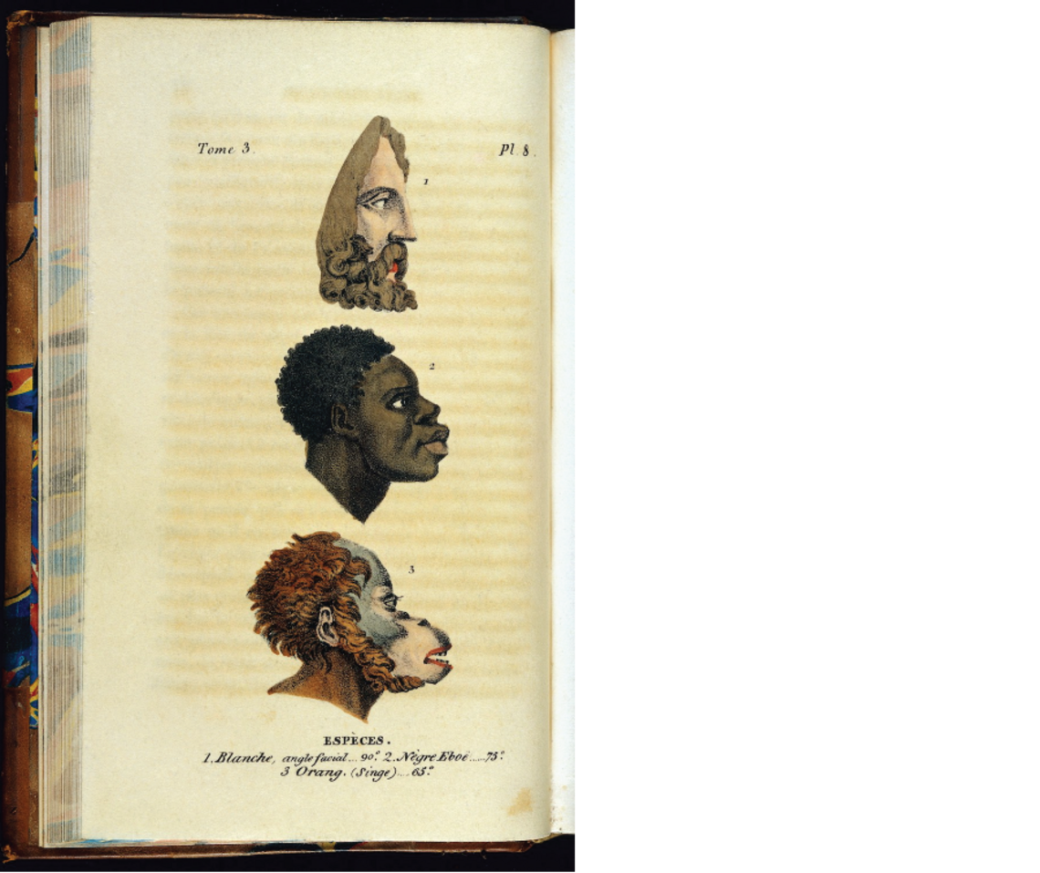 """This illustration from an early 19th-century book, """"Histoire naturelle de genre humain"""" by Julien-Joseph Virey, gives a glimpse at how science of the era was used to justify theories of racial inferiority."""