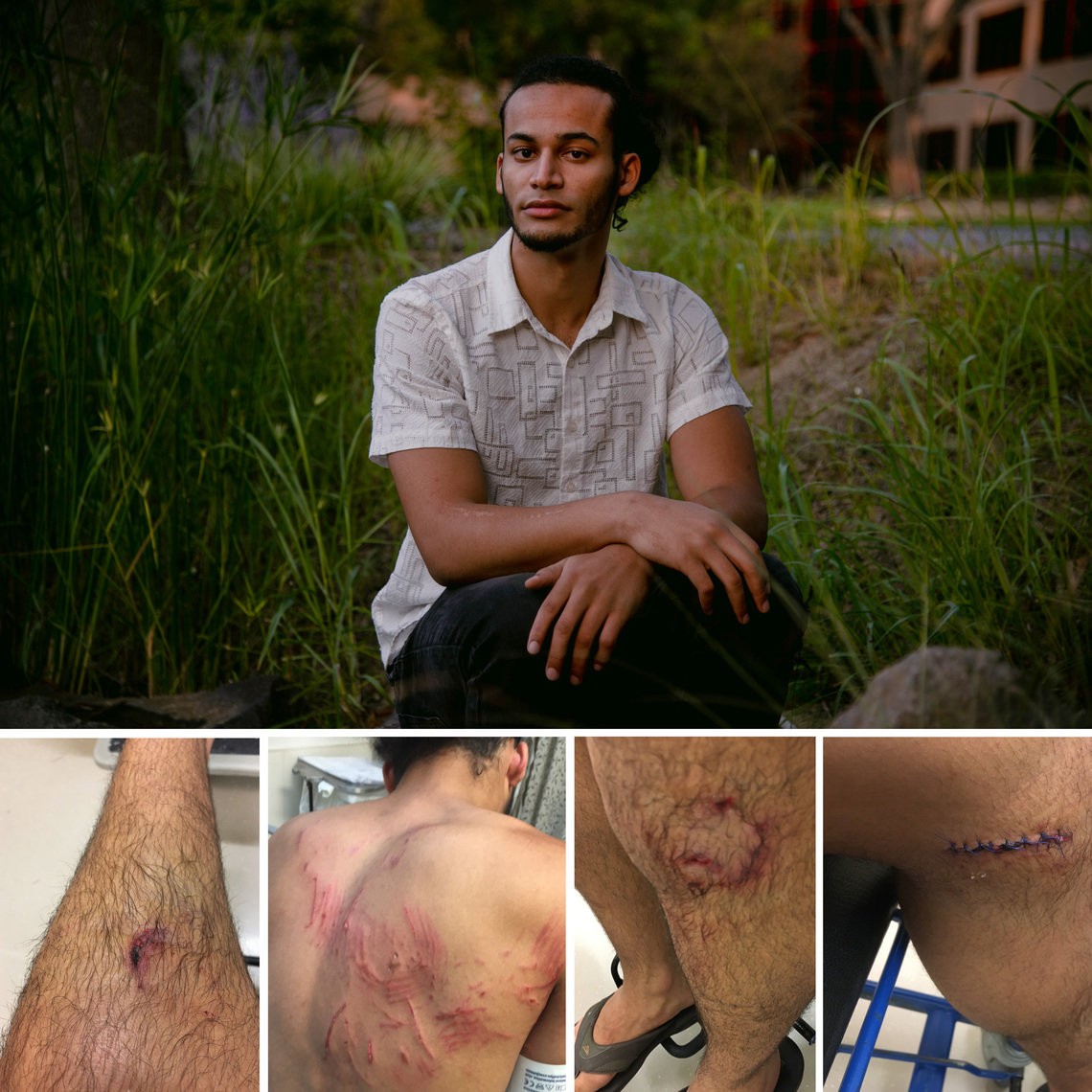 Joseph Malott, a 22-year-old architecture student, was attacked and bitten by a police dog in Walnut Creek, California, during a Black Lives Matter demonstration on June 1. Photos of his back and legs a few hours after the incident.