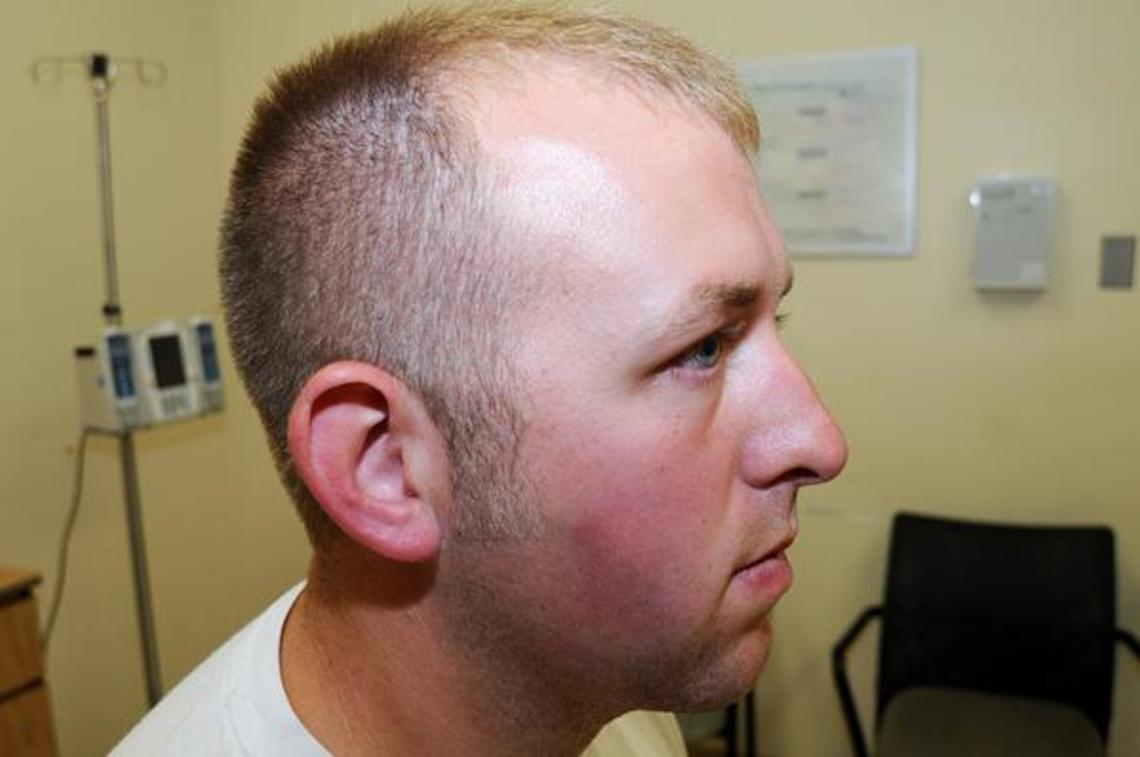 Evidence photos of Darren Wilson released by the St. Louis County Prosecutor's Office.